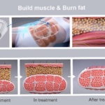 New Course Launched: High-Intensity Electro-Magnetic Therapy – Build Muscle and Burn Fat