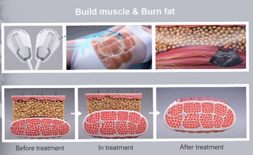 Build Muscle and Burn Fat with High-Intensity Electro-Magnetic Therapy